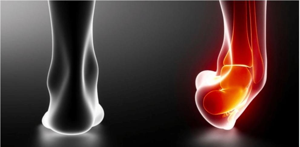 Entorse et traitement ostéopathique
